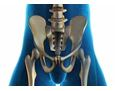 Hip, groin and spinal replacement